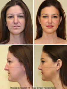 Nose Surgery Houston