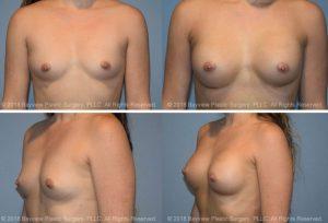 Breast Augmentation Tacoma Wa